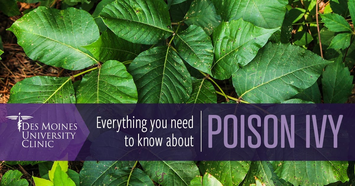 Everything you need to know about poison ivy
